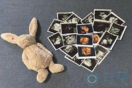 第三代试管婴儿技术:受精卵第几天分性别?