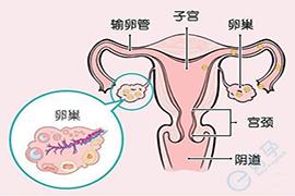 多囊卵巢综合症去美国做试管婴儿,能成功吗?