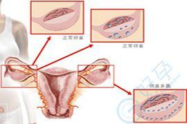 患上了多囊综合症还能正常的怀孕吗?