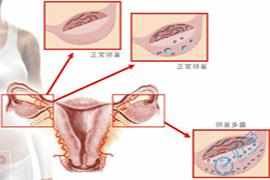 多囊卵巢到泰国做第三代试管婴儿需要的费用有哪些?