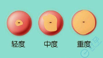 女性宫颈糜烂有哪些症状?做试管婴儿会影响收费用吗?