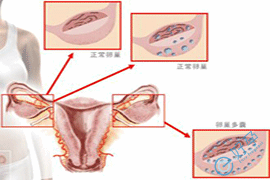 多囊卵巢综合症促排卵成功率,第三代管婴儿费用多少