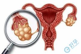 卵巢巧克力囊肿做试管婴儿长方案具体流程