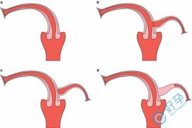 e好孕:单角子宫可以做试管婴儿吗?