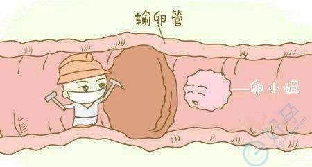 输卵管堵塞到底是手术还是试管婴儿呢?