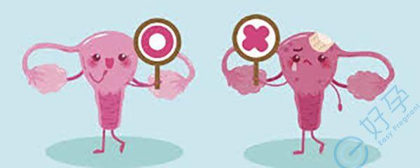 做试管婴儿会导致卵巢早衰吗?女人做试管就废了?