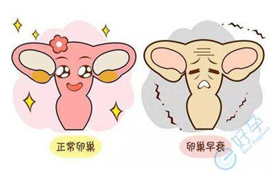 你被卵巢早衰了吗?或许卵巢早衰已经在慢慢向你靠近!