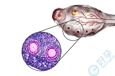 试管婴儿周期中,什么样的卵泡是成熟卵泡?