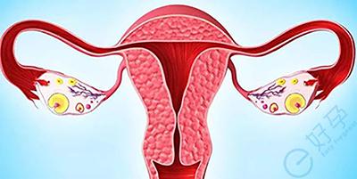 子宫疾病|子宫内膜炎