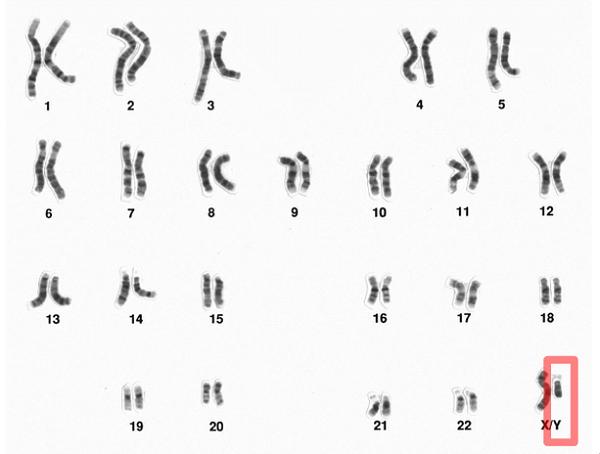 y染色体微缺失