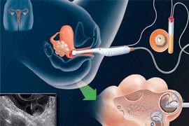 试管小知识:一次取出多颗卵子是提前预支卵巢储备吗?