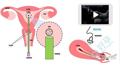 宫腔镜风险有多大?做泰国试管婴儿前需要做吗?
