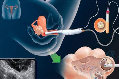 泰国试管婴儿技术:如何提高获取健康卵子的数量?