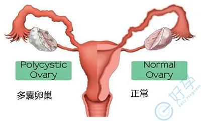 多囊卵巢综合征做泰国试管婴儿,成功率有多高?