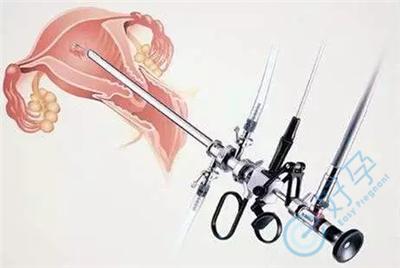 泰国试管婴儿需要检查宫腔镜吗,有什么重要意义?