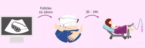 高龄失独夫妻做泰国试管婴儿,如何降低风险?