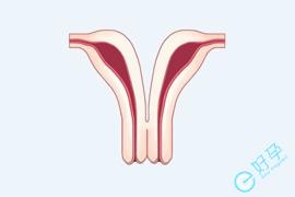 子宫纵膈一定会造成不孕吗?看完这个再决定切与不切